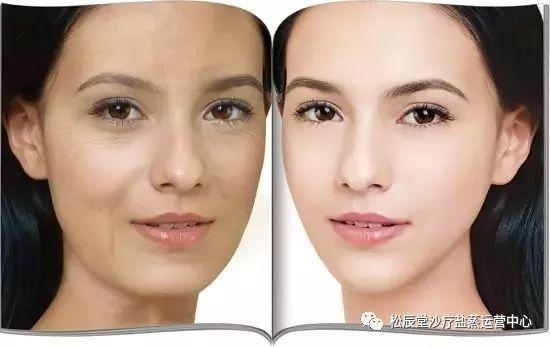 松辰堂国际带您了解怎样减缓衰老